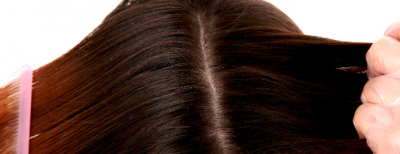 Dandruff-treatments-at-Paly-Salon